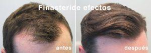 Foto antes y después de tomar finasterid